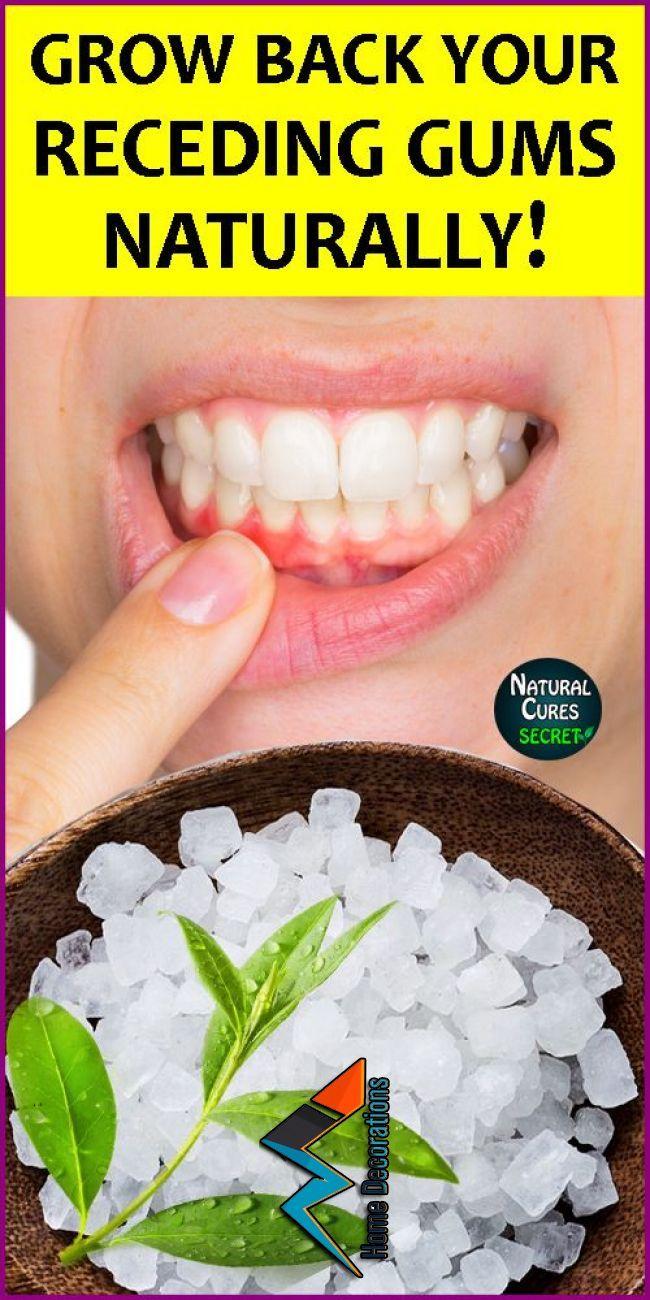 how to treat receding gums