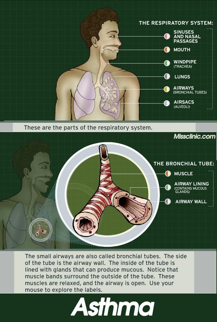 Temporal Arteritis Natural Remedies
