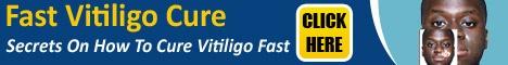 This Vitiligo Treatments Help In 30 Days Or Less