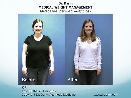 Nv clinical weight loss product fairly stim tolerant