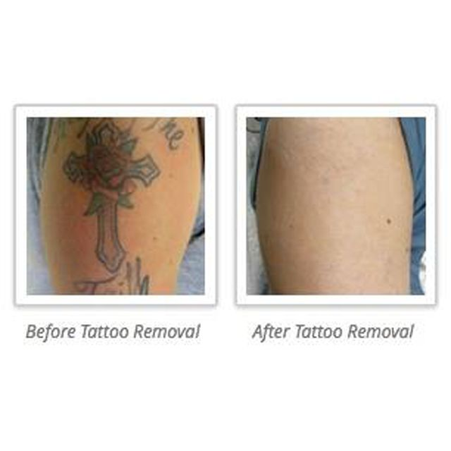 Do You Need Your Tattoo Removed We Can Help