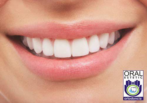 Un diseño de sonrisa es un proceso estético que cambia el tamaño, forma, color y alineación de los dientes y altera los tejidos faciales y dentales con el fin de mejorarla apariencia. Buscar este sitio http://oralesteticortodoncia.com/ para obtener más información sobre diseño de sonrisa Armenia Quindío. Un trabajo de diseño de sonrisa puede dar no sólo una nueva sonrisa, sino también nueva confianza.
