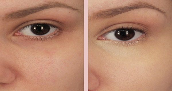 Put This Mixture Under Your Eyes and the Result is Amazing! | The Healthy Habit | 1M Health Tips: