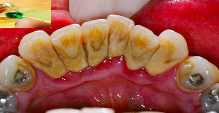 Como eliminar el sarro o la placa dental en tan solo 5 minutos y sin ir al dentista! - TuSalud.Info