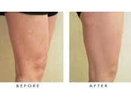 Information About Alternative Spider Vein Treatment. Good article to share.