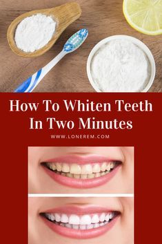 How To Whiten Teeth In Two Minutes My Life Pinterest Teeth