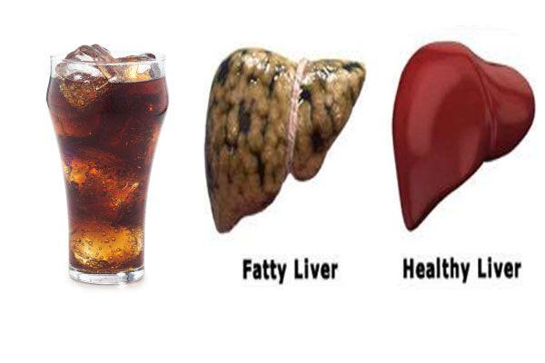 fatty liver and diet soda