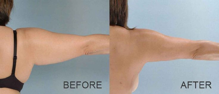 Arm liposuction vs arm lift 6 – Liposuction before and after – #arm #Lift #Lipos…