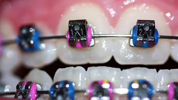 how to choose colors for braces