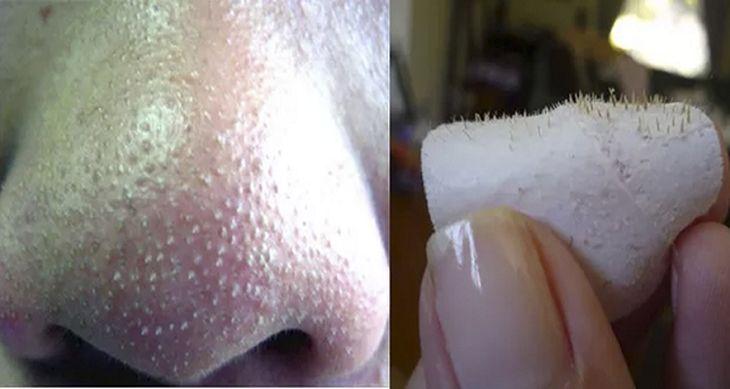"""Los puntos negros denominados """"comedones abiertos"""", son pequeñas manchas oscuras en la piel a veces."""