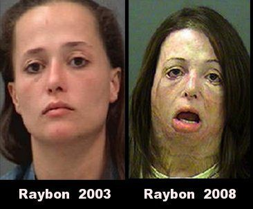 methamphetamine | The Many Faces of Meth – Before & After Photos of Meth Users