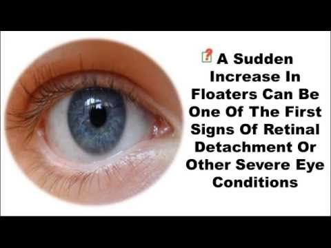 http://curing-eye-floaters.plus101.com ---Best Treatment For Eye Floaters. Eye floaters are extremely common, especially among older adults. They can occur in everyone, and indeed some people are born with them. Eye floaters are generally caused by damage, or imperfections in the vitreous humor, the jelly-like liquid found in the eyeball. They can also be caused by the solidification of proteins in this solution, or by the leakage of blood cells into the vitreous.