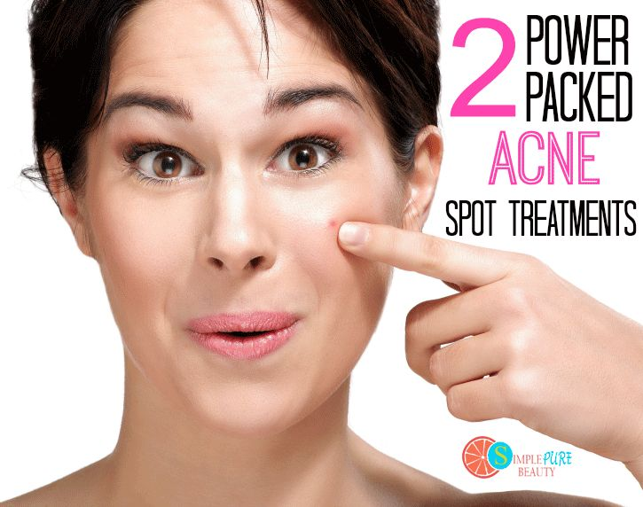 Baking soda acne spot treatment overnight