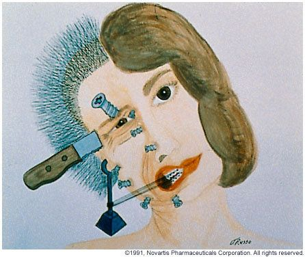 Migraine Sufferer -- explains the exact feeling; except sometimes an ice pick instead of knife.