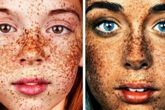Škoricová maska Vás zbaví pigmentových škvŕn, jaziev, akné a vrások už po druhom použití.   Chillin.sk