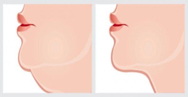 Een dubbele onderkin kan worden veroorzaakt door: lichaamsbouw, leeftijd en vetpercentage! Vaak is een overmatig vetpercentage de oorzaak van een dubbele kin maar leeftijd is ook een belangrijke factor! Wanneer je wat ouder wordt gaat het vel bij de kin vaak wat hangen. Wij hebben wat oefeningen gevonden waarmee je de dubbele kin binnen 2 …