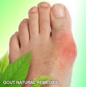 10 Home Remedies for Gout Pain; Epsom salt, cherries, strawberries, apple cider vinegar, plenty of water, exercise, foods containing Vitamin C.