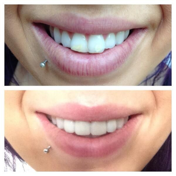 Porcelain veneers before and after celebrity photos