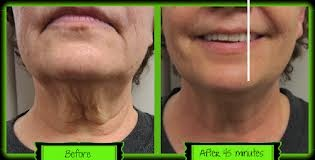 the it works face wrap sure beats a face lift wow for more information contact me Angelica :) Only $59 a treatment as a Loyal Customer  Like me today http://www.facebook.com/unwrapanewyoutoday