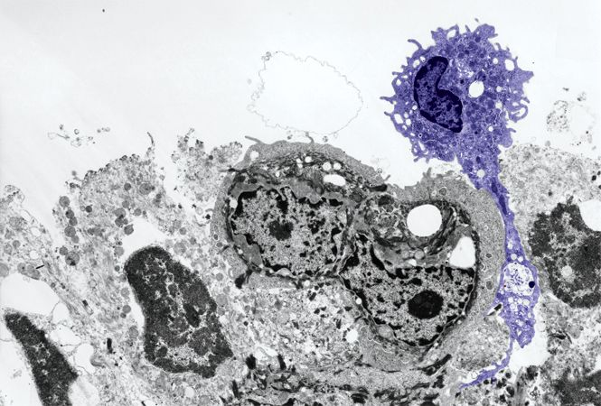 """Dendritic cells are the """"shakers and movers"""" of the immune system. They detect pathogens and then get the immune response rolling by activating T cells. Dendritic cells in the skin and other epithelial surfaces are called Langerhans cells (purple). Like all dendritic cells, Langerhans cells use receptors on their cell surface (e.g., Toll receptors) to identify and uptake pathogens by phagocytosis or endocytosis."""