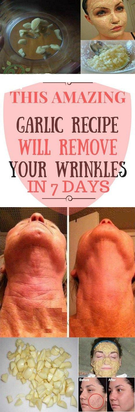 All the women are always talking about the great care of skin care. The Garlic paste is a best natural remedies to keep clean and remove your wrinkles naturally and with the pain. In this way, The …