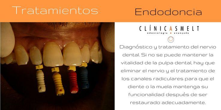 Tratamientos Clínica Smelt: Endodoncia.