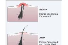 How to Remove Dark Spots From Razor Bumps & Ingrown Hairs | eHow