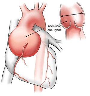 Trivia: Will An Enlarged Aorta Return to Normal Size After Bicuspid Aortic Valve Replacement?