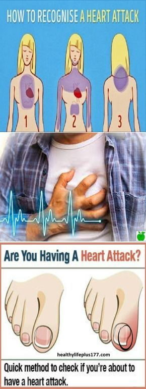 Can you have a heart attack and not notice? Can you have a heart attack and not notice? The most common description of the feeling of a heart attack is that it feels like a heavy weight will crush your chest accompanied by an overwhelming feeling anxiety. In movies, people are often seen clinging to their chest, showing extreme panic, and then collapsing onto the floor.