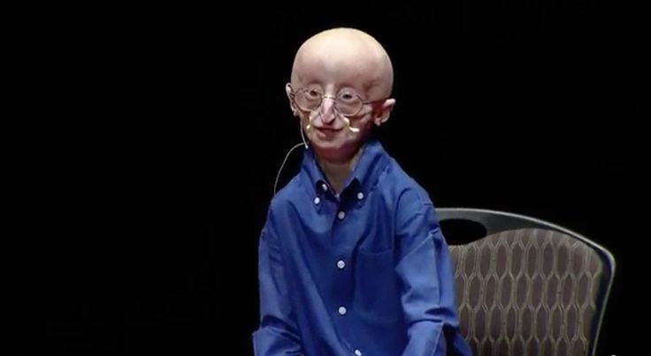 (12:45) Sam is 17 and has Progeria, but he's got a lot of insight on living a happy life. This is his TEDx talk.