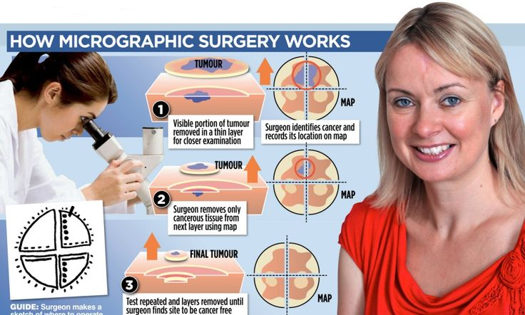 The paper and pencil cure for skin cancer: Surgery has 99 per cent success rate and less scarring than other treatments