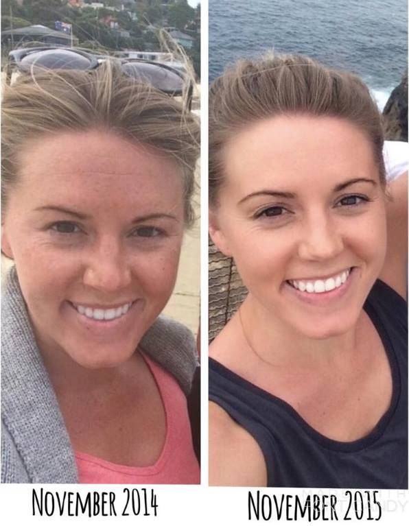 Before & After Reverse Regimen Rodan + Fields for sun damage and brown spots