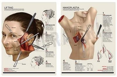 Radiografía de una cirugía Cosmetica  Procedimientos: Lifting Facial o Estiramiento facial y Aumento de Busto