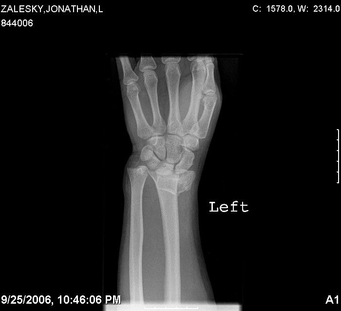Xray Broken Arm 43 best images ...