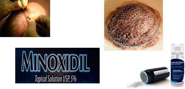 Tratamientos para la alopecia femenina y masculina