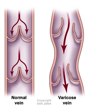 Spider Vein Vericose Treatment - 3 Natural Ways without Surgery