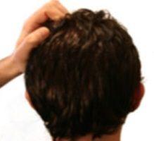 comment traiter les démangeaisons du cuir chevelu