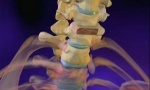When It Comes To Spine Surgery: Go With Your Gut.