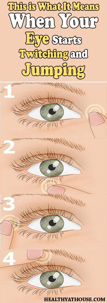 EYE TWITCHING IS USUALLY CAUSED BY FATIGUE, STRESS, EXCESSIVE AMOUNTS OF TOBACCO, ALCOHOL, CAFFEINE AND FEW OTHER FACTORS. BUT EVEN DOCTORS AREN'T SURE ABOUT THE EXACT REASON ON WHAT CAUSES EYE TWITCHING. Some kind of allergies, irritation and dry eyes are also linked to eye twitching. In some cases, eye twitching can present a symptom …