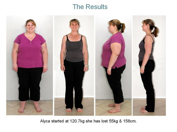 Weight loss hypnosis townsville image 6