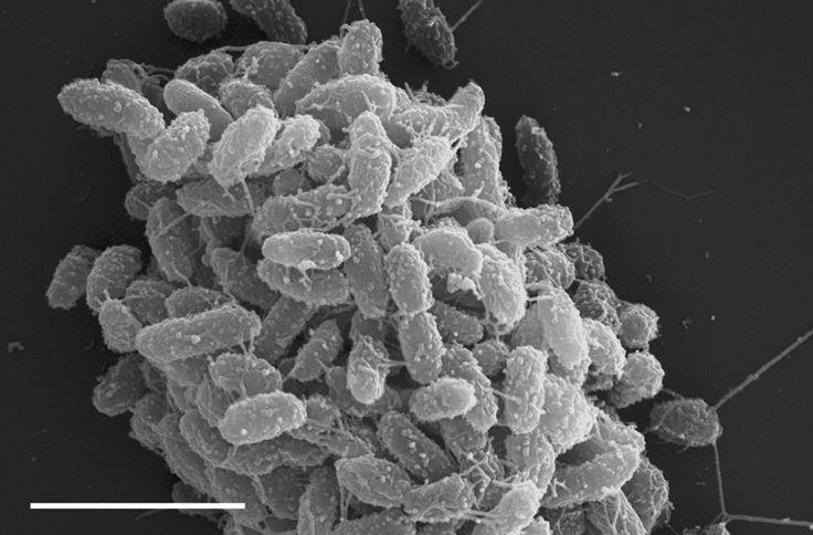 Steroidobacter denitrificans  [000.009.333]