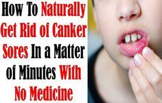 Natural Easy Treatments To Get Rid Of Mouth Ulcers Fast -  Mouth ulcers could be very annoying and painful specially while chewing the food r trying t talk t someone however they are not dangerous generally and easy to treat, the following are some natural ways you can relieve and treat mouth ulcers in a short time so read on. 1- Honey. Honey is known...