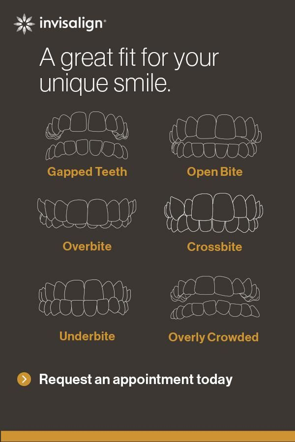 55 Best Is Invisalign Right For You Images On Pinterest