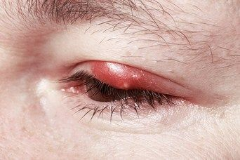 TheraLife: Chalazion and Styes - What is the difference?