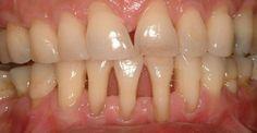 Эти проверенные рецепты дают 100% результат! Оголение шейки и корня зуба не следует оставлять без лечения. У многих людей есть проблемы с тем, что оголилась шейка или корень зуба. Проявляйте заботу о…