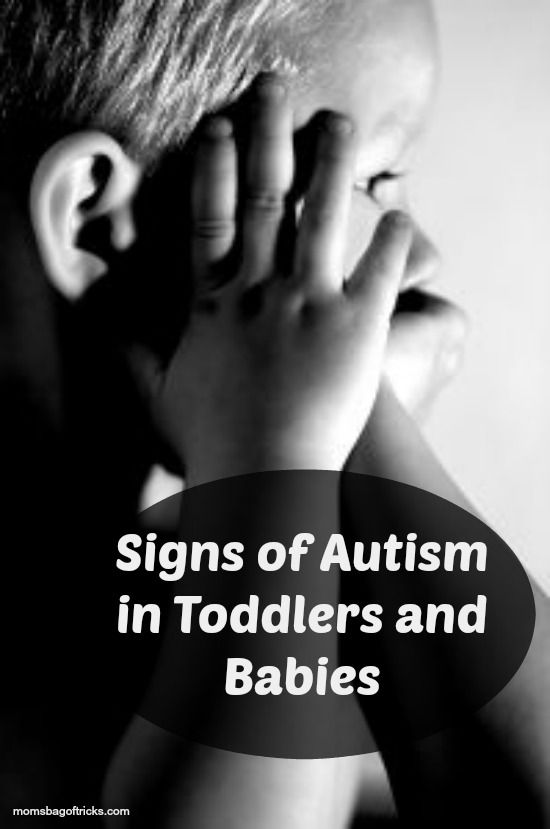 Signs of Autism in Toddlers and Babies