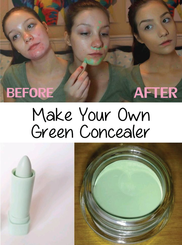 A green concealer is what you need if you have red sports on your face or you have acne. It is great in covering this kind of problem. But you shouldn't use it to cover bruises or dark circles. Beside buying a green concealer, there is always the option of making your own. Here is a natural recipe of how to make your own green concealer.