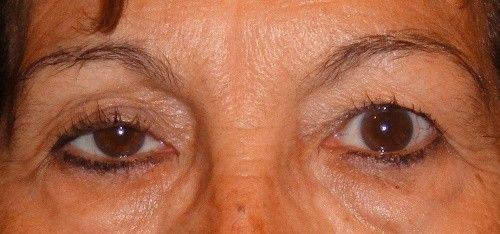 Verbeter hangende oogleden | gezonderleven.com