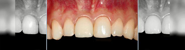 I denti con faccette o intarsi ( conosciute como  faccette estetiche) sono molto attraenti !  Necessità di avere denti belli? Vieni in Romania!  Vi invitiamo a vedere qui di più e contattaci subito! http://www.intermedline.com/dental-clinics-romania/ #clinicadentale #clinicaodontoiatrica #clinicaodontoiatricainRomania #faccettedentali #faccettedentaliinRomania #faccetteinporcellana #faccetteinporcellanainRomania #turismodentale #turismodentaleinRomania #dentista #dentistainRomania #dentisti