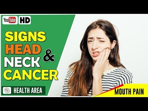 6 Symptoms of Head and Neck Cancer - WATCH THE VIDEO   *** symptoms of throat cancer ***   6 Symptoms of Head and Neck Cancer: 1. Sore throat A sore throat is rarely worth worrying about — after all, it can be caused by a range of fairly harmless afflictions, from over-exerting the voice muscles to seasonal allergies to the common cold. Generally...